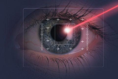 LASIK Eye Surgery FAQs